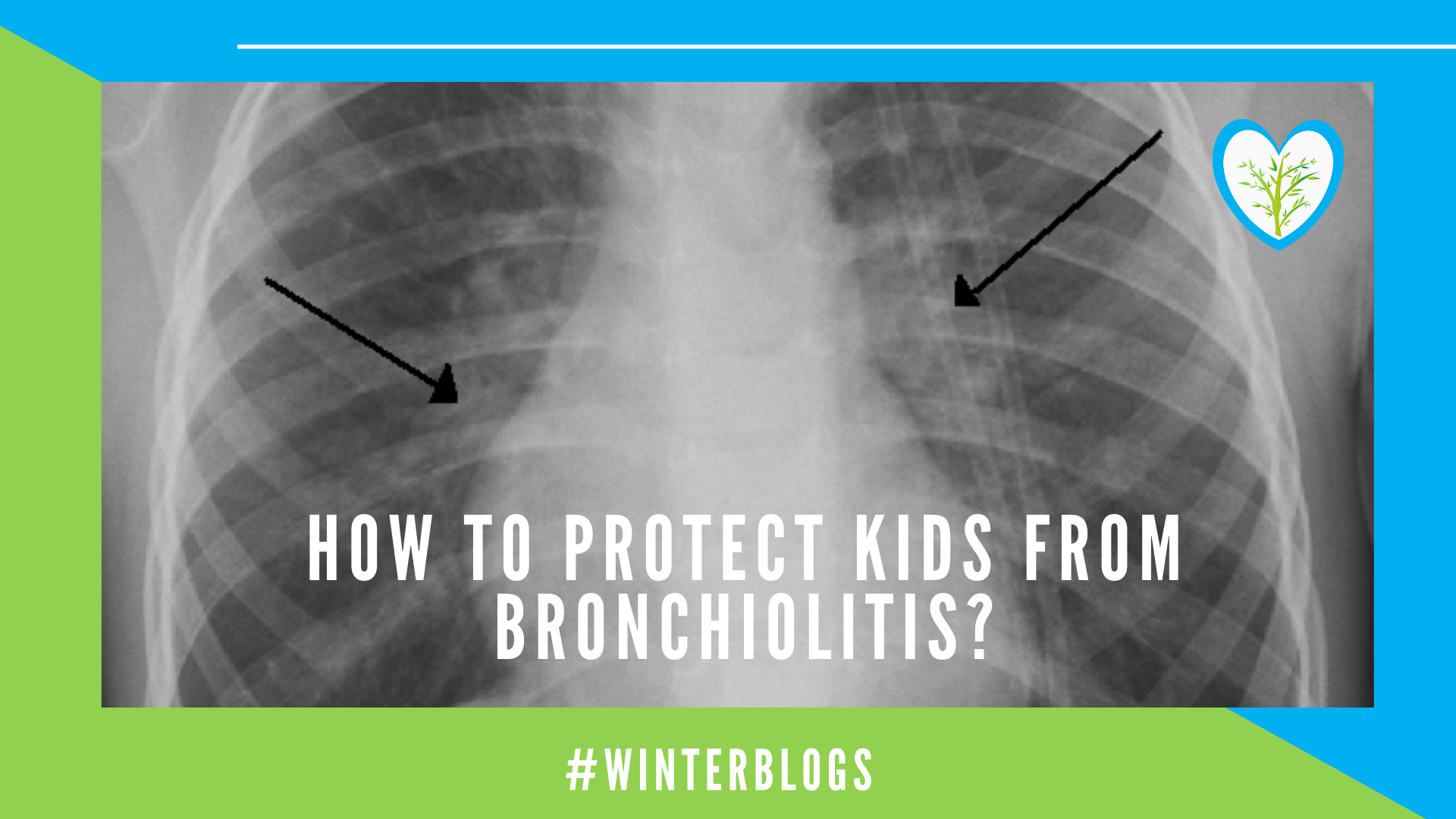 How to Protect Kids from Bronchiolitis? Febbrisia